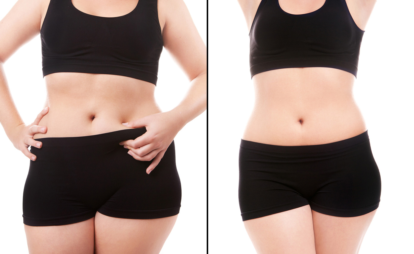 Slimwave-Electronic-Muscle-Stimulation-technology-montreal-after-1