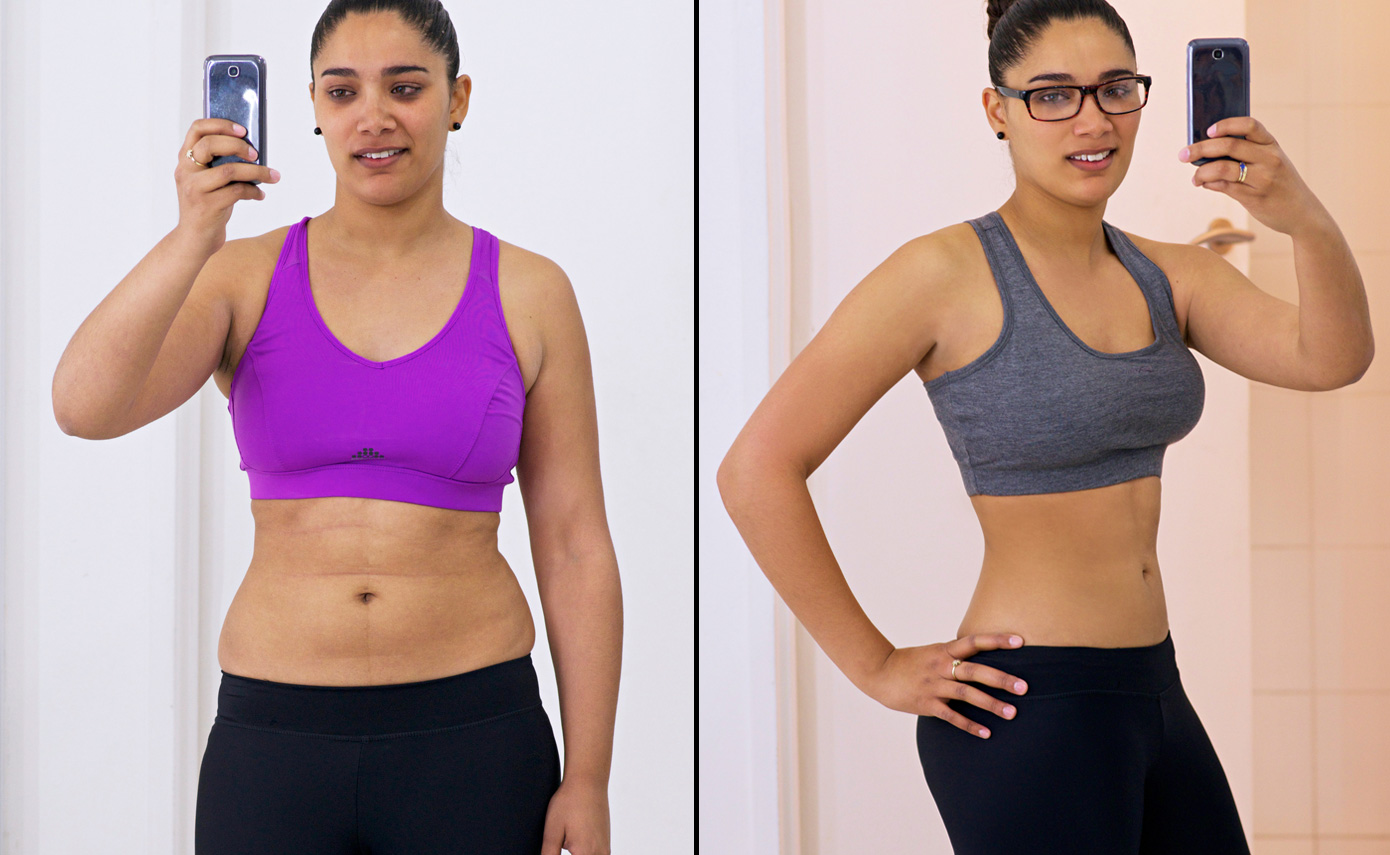 Slimwave-Electronic-Muscle-Stimulation-technology-montreal-after-2