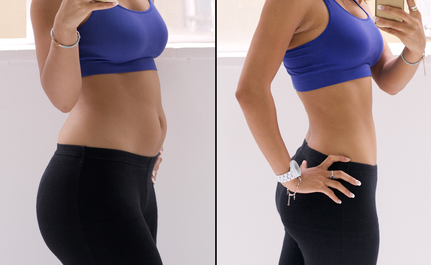 Slimwave-Electronic-Muscle-Stimulation-technology-montreal-after-3