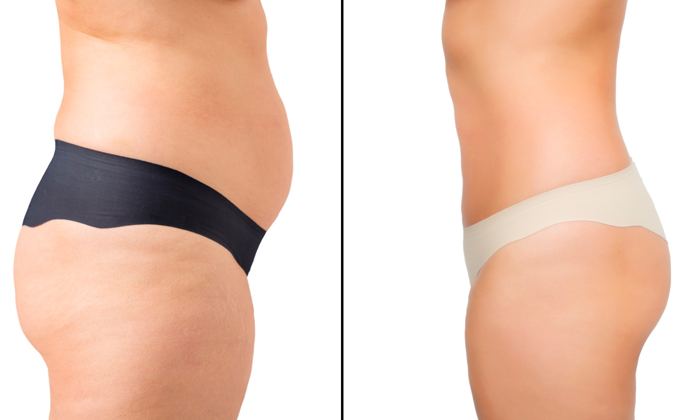 Slimwave-Electronic-Muscle-Stimulation-technology-montreal-after-5